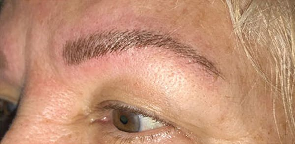 Microblading Gallery - Patient 23533923 - Image 2