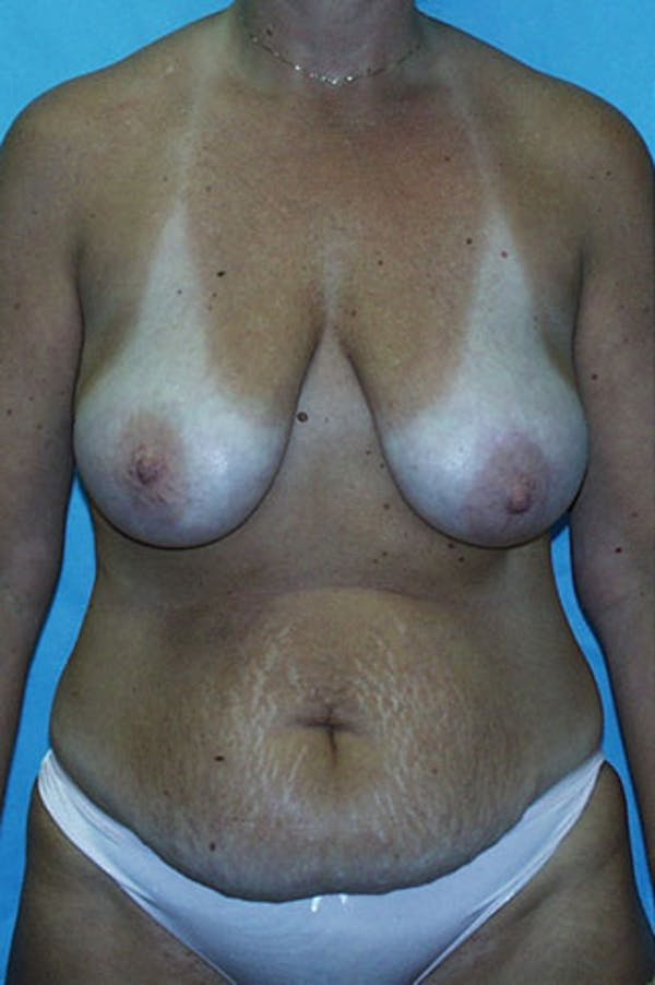 Mommy Makeover Gallery - Patient 23533936 - Image 1