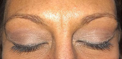 Microblading Gallery - Patient 23533934 - Image 1
