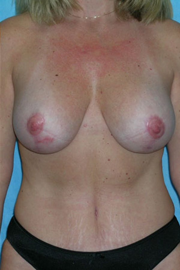 Mommy Makeover Gallery - Patient 23533936 - Image 2