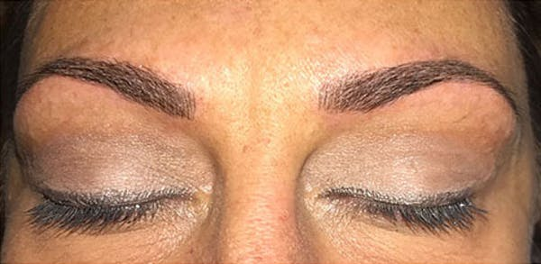 Microblading Gallery - Patient 23533934 - Image 2