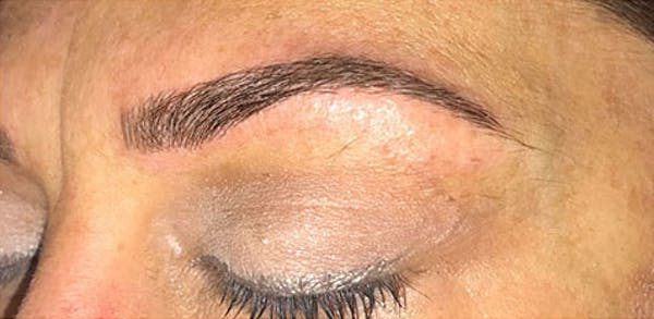 Microblading Gallery - Patient 23533934 - Image 4