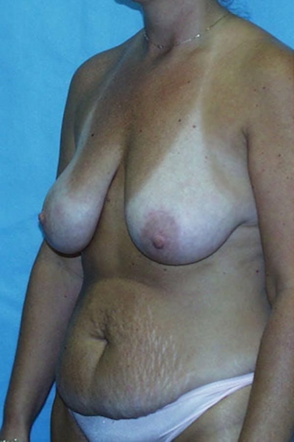 Mommy Makeover Gallery - Patient 23533936 - Image 5