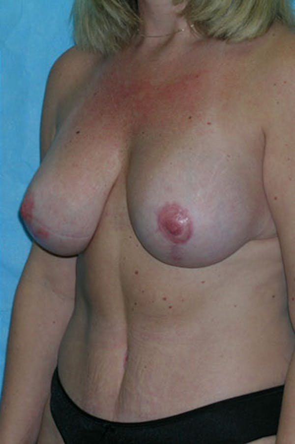 Mommy Makeover Gallery - Patient 23533936 - Image 6