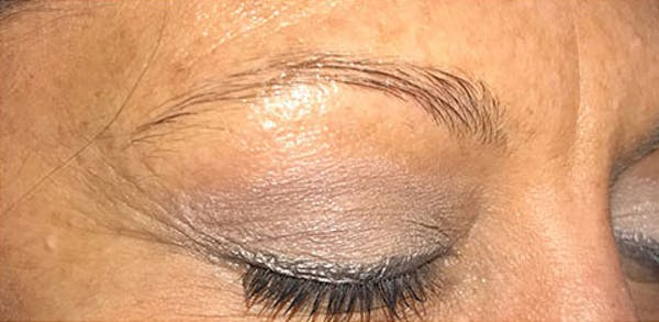 Microblading Gallery - Patient 23533934 - Image 5