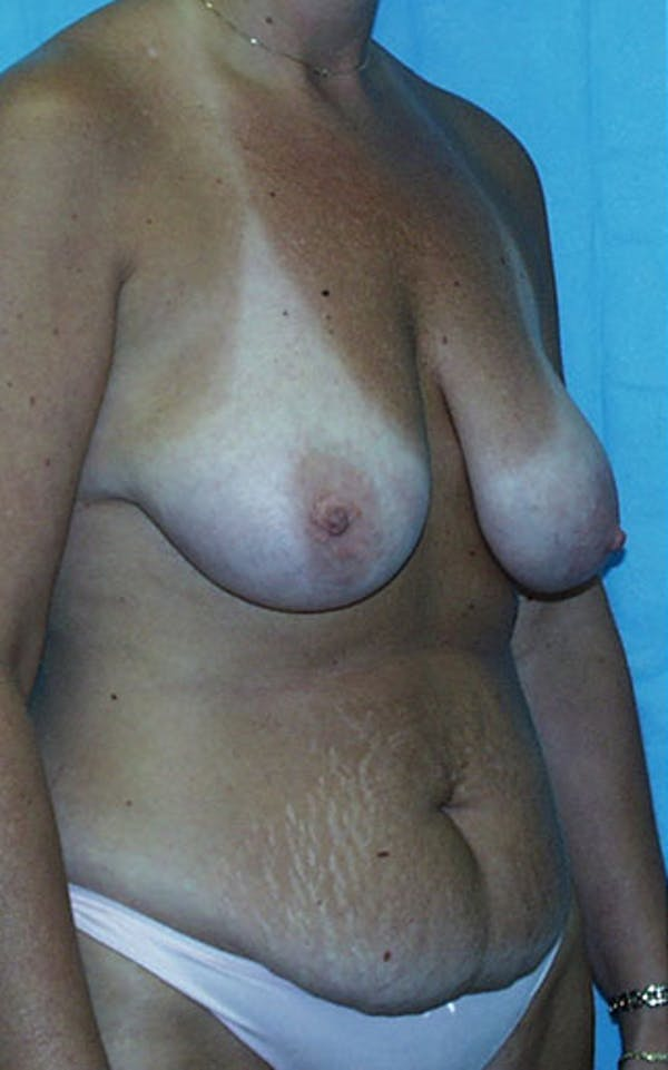 Mommy Makeover Gallery - Patient 23533936 - Image 7
