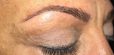 Microblading Gallery - Patient 23533934 - Image 6