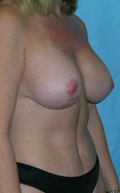 Mommy Makeover Gallery - Patient 23533936 - Image 8