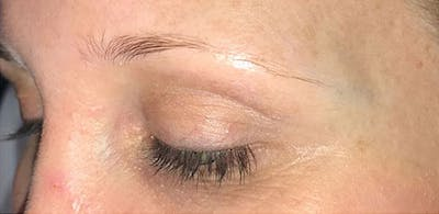 Microblading Gallery - Patient 23533941 - Image 1