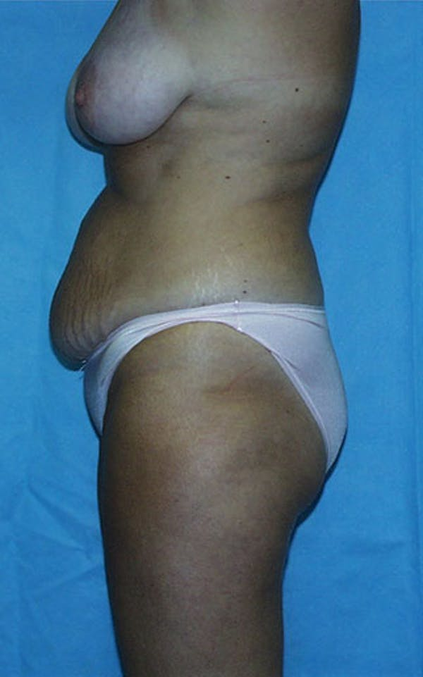 Mommy Makeover Gallery - Patient 23533936 - Image 9