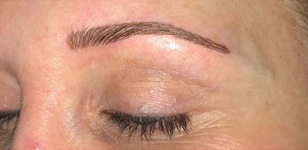 Microblading Gallery - Patient 23533941 - Image 2