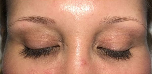 Microblading Gallery - Patient 23533941 - Image 3