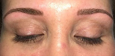 Microblading Gallery - Patient 23533941 - Image 4