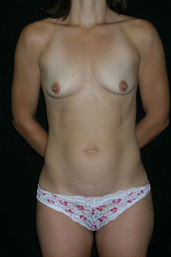 Mommy Makeover Gallery - Patient 23533949 - Image 1