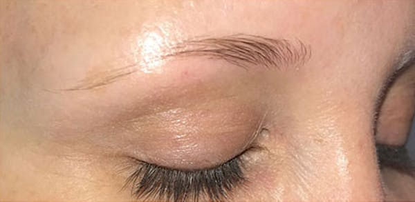 Microblading Gallery - Patient 23533941 - Image 5