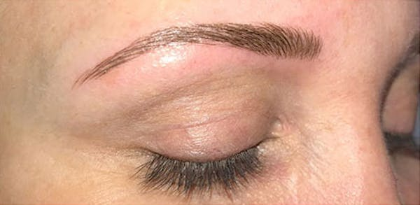 Microblading Gallery - Patient 23533941 - Image 6