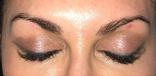 Microblading Gallery - Patient 23533945 - Image 1