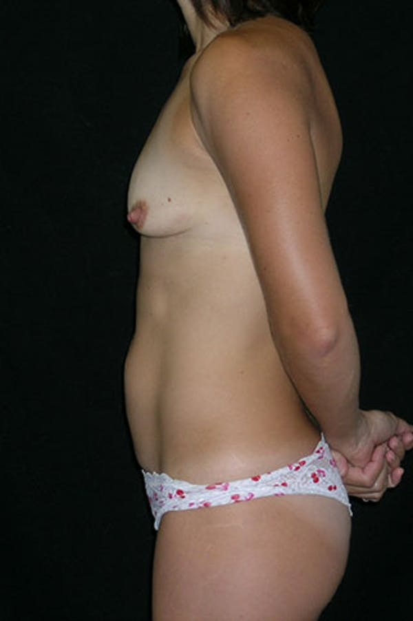 Mommy Makeover Gallery - Patient 23533949 - Image 5