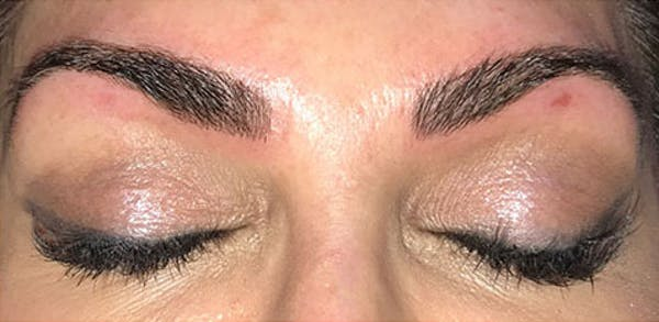 Microblading Gallery - Patient 23533945 - Image 2