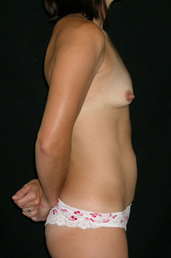 Mommy Makeover Gallery - Patient 23533949 - Image 7