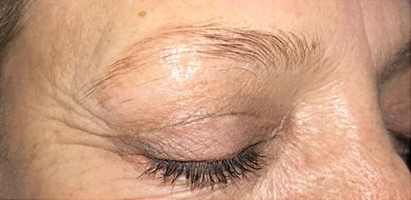 Microblading Gallery - Patient 23533948 - Image 1