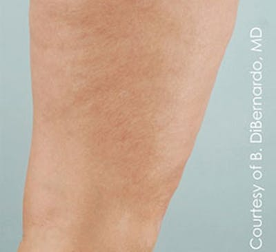 Cellulaze Gallery - Patient 23533947 - Image 2