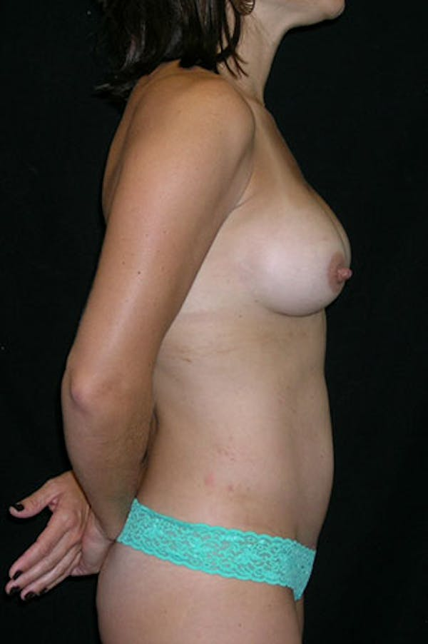 Mommy Makeover Gallery - Patient 23533949 - Image 8