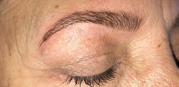 Microblading Gallery - Patient 23533948 - Image 2