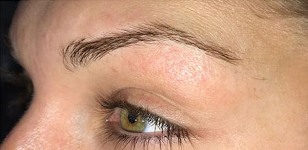 Microblading Gallery - Patient 23533953 - Image 1