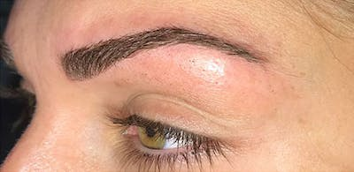 Microblading Gallery - Patient 23533953 - Image 2