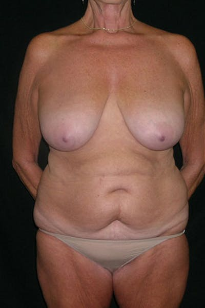 Mommy Makeover Gallery - Patient 23533955 - Image 1