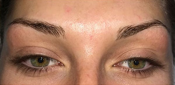 Microblading Gallery - Patient 23533953 - Image 3
