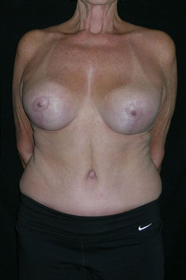 Mommy Makeover Gallery - Patient 23533955 - Image 2