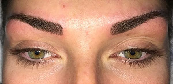 Microblading Gallery - Patient 23533953 - Image 4