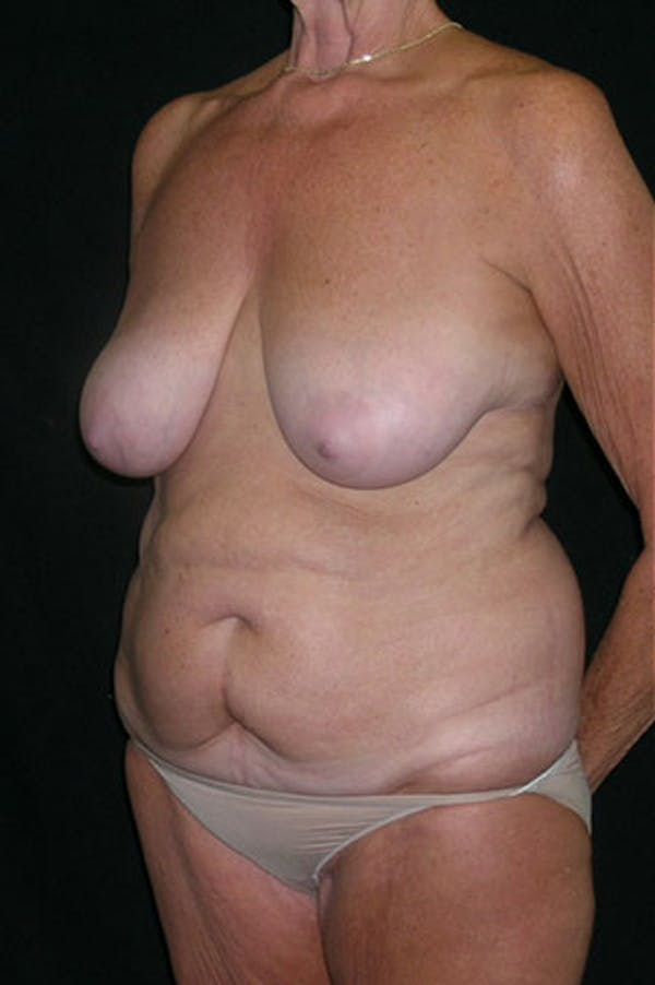 Mommy Makeover Gallery - Patient 23533955 - Image 3