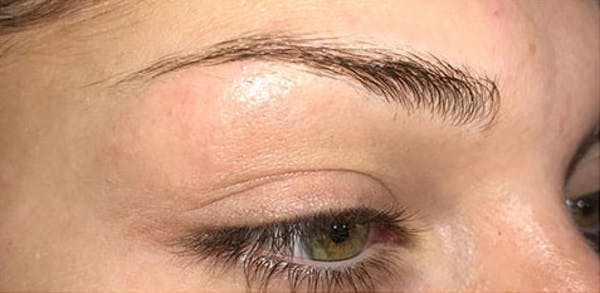 Microblading Gallery - Patient 23533953 - Image 5