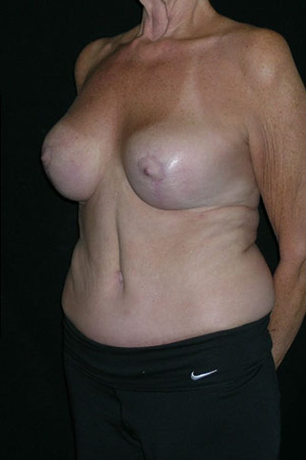 Mommy Makeover Gallery - Patient 23533955 - Image 4