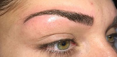 Microblading Gallery - Patient 23533953 - Image 6