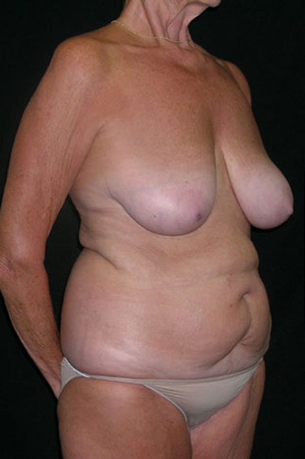 Mommy Makeover Gallery - Patient 23533955 - Image 5