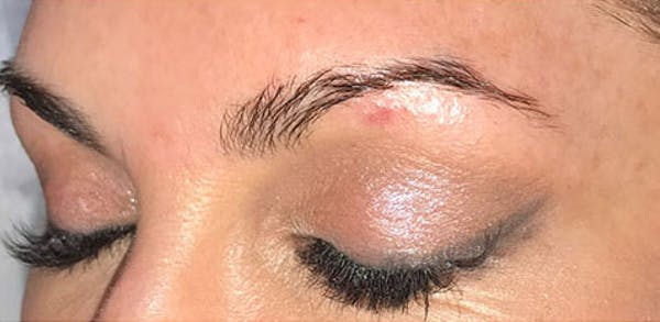 Microblading Gallery - Patient 23533954 - Image 1