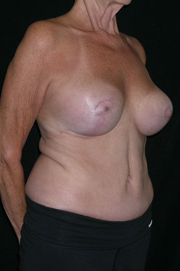 Mommy Makeover Gallery - Patient 23533955 - Image 6