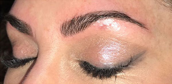 Microblading Gallery - Patient 23533954 - Image 2