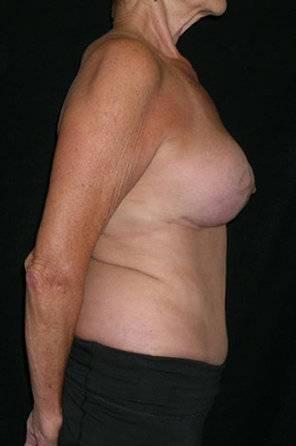 Mommy Makeover Gallery - Patient 23533955 - Image 8