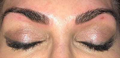 Microblading Gallery - Patient 23533954 - Image 4
