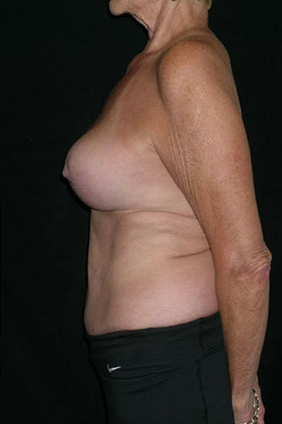 Mommy Makeover Gallery - Patient 23533955 - Image 10