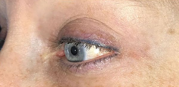 Microblading Gallery - Patient 23533957 - Image 1