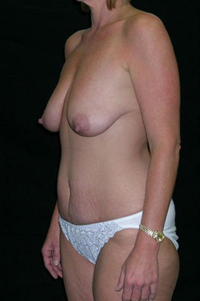 Mommy Makeover Gallery - Patient 23533962 - Image 1