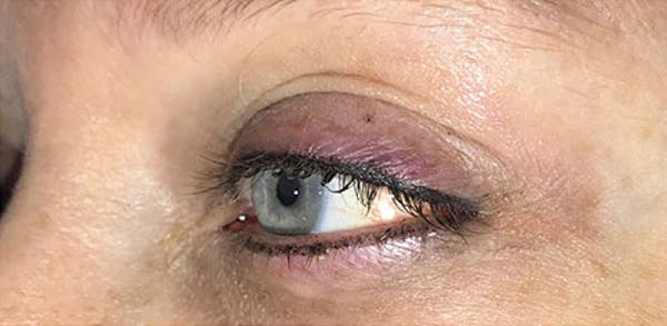 Microblading Gallery - Patient 23533957 - Image 2