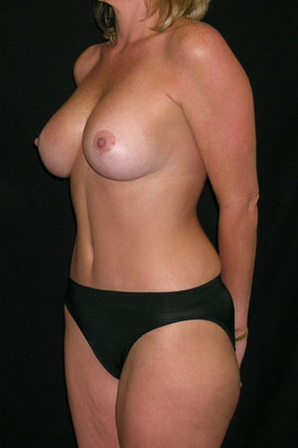 Mommy Makeover Gallery - Patient 23533962 - Image 2