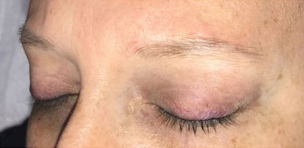 Microblading Gallery - Patient 23533957 - Image 3